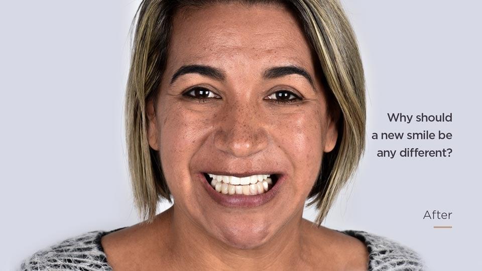 Dental_Implants_After_Photo_EN