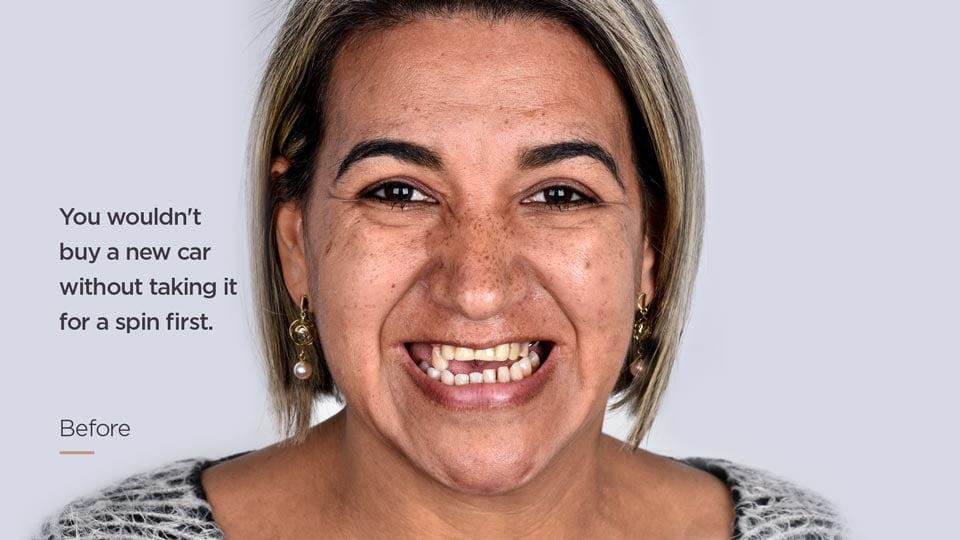 Dental_Implants_Before_Photo_EN