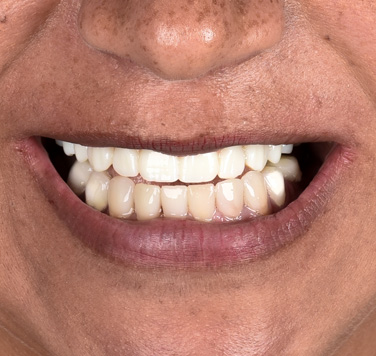 Dental_Implants_Main_Page_Gallery_01
