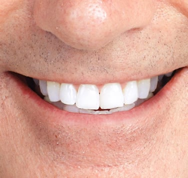 Dental_Implants_Main_Page_Gallery_03