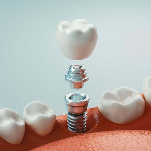Dental_Implants_Main_Page_Natural_Restorations_2_V2
